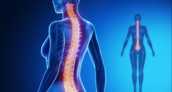 esercizio-per-mal-di-schiena